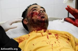 Mohammad al-Azza, fotógrafo palestino, herido el 8 de abril por un soldado israelí que le disparó cuando cubría una incursión en el campo de refugiados de Aida, Belén. (Activestills).