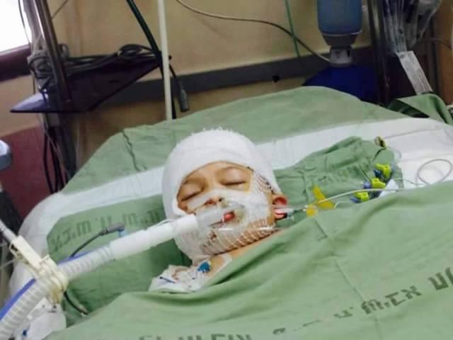 Ahmad (4 años), hermanito de Ali, luchando por su vida.