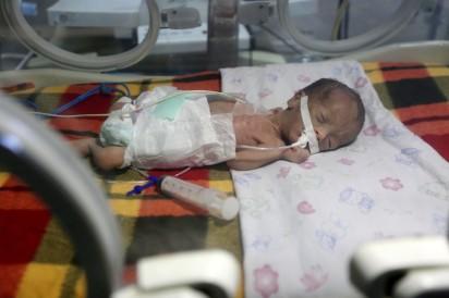 Un recién nacido en una encubadora de la unidad de cuidados intensivos del hospital Shifa en Gaza, el 27/6/17. Los cortes de electricidad ponen a estos bebes al borde de la muerte (Mohammed Asad).
