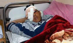 Mohammad al-Farani (14) a quien le dispararon en la cara con un cartucho de gas lacrimógeno, causándole fractura de cráneo y pérdida del ojo derecho. loss of his right eye. (DCIP
