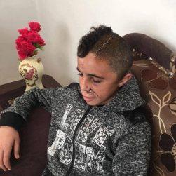Muhammad Tamimi (14) después de ser sometido a una compleja operación para quitarle la bala que le entró por la mandíbula y se alojó en su cerebro, después que un soldado israelí le disparara a la cara, apenas cinco meses después de haber pasado un trimestre en la cárcel, acusado de tirar piedras. Tuvieron que quitarle un pedazo del cráneo para aliviar la presión sobre el cerebro, y se lo volverán a colocar dentro de seis meses.