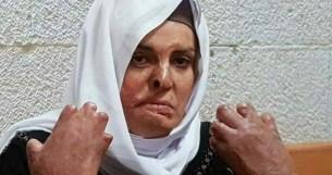 Israa después de sufrir graves quemaduras, requiere tratamientos y cirugías que las autoridades israelíes le niegan.